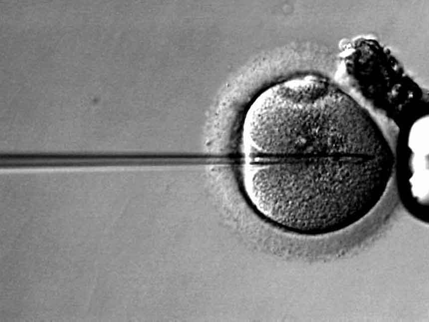 CareAcross-fertility-preservation
