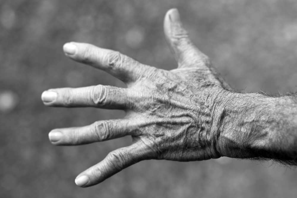 CareAcross-skin-cancer-myth-hand-elderly-woman-wrinkles