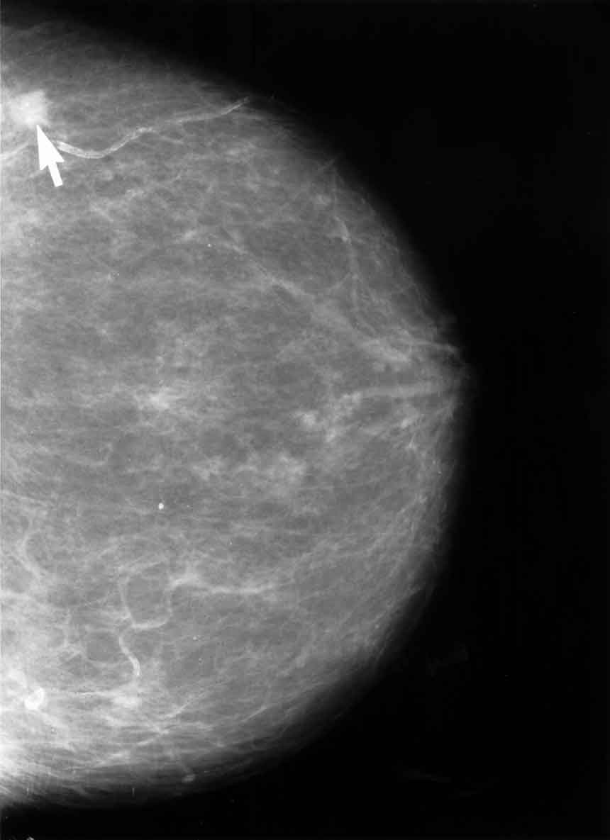 CareAcross-Mammogram-By Unknown photographer [Public domain], via Wikimedia Commons